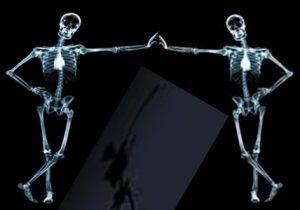 Vitaminas que fortalecen los huesos